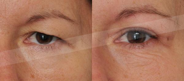 Silmäluomien Kohotus Ilman Leikkausta